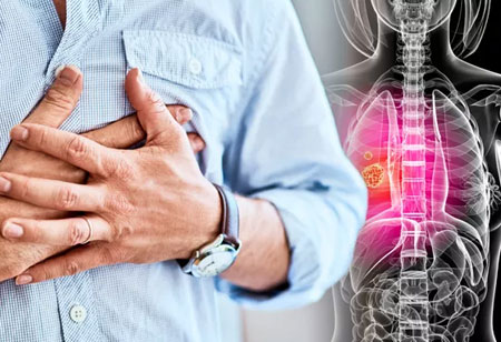 Can ELeCt Help In Relieving Some Pain of Patients With Lung Cancer?
