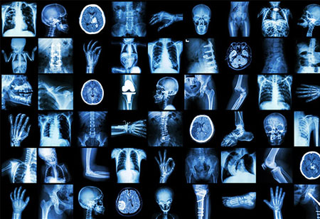 The Leap of Medical Imaging Technology